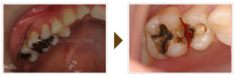 銀歯のインレー